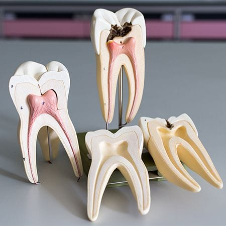 Model of the inside of a tooth throughout the root canal process