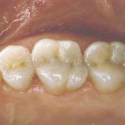 Clsoeup of patient's smile after tooth colored filling treatment