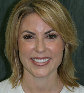 Woman with healthy beautiful smile after restorative dentistry