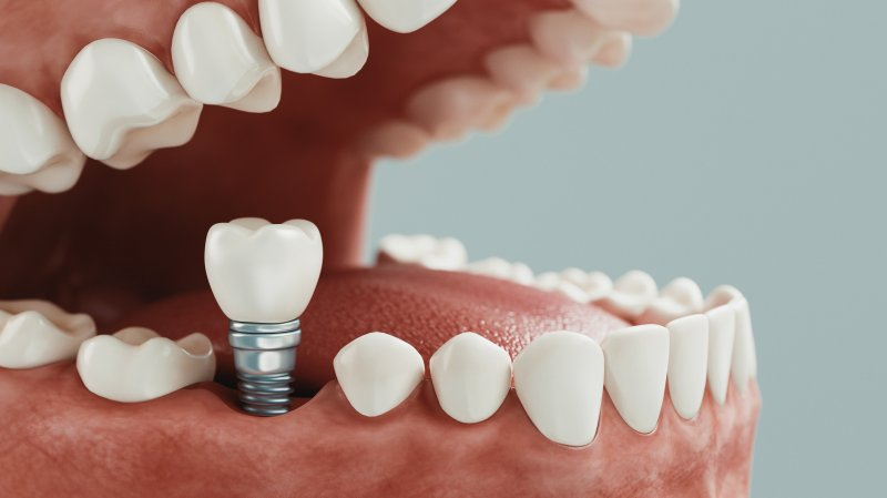 Dental implant post being placed in mouth